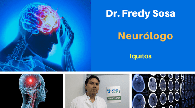 neurólogo iquitos